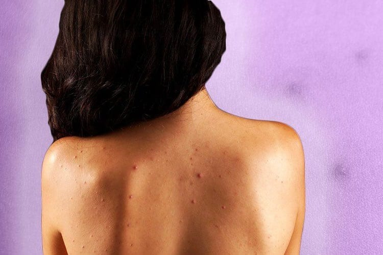 WHAT IS BACK ACNE A SIGN OF?